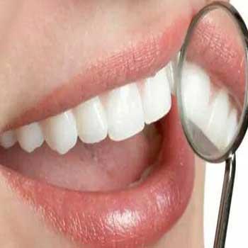 Ahli Gigi Bali Bleaching Memutikan Gigi Membersihkan Gigi