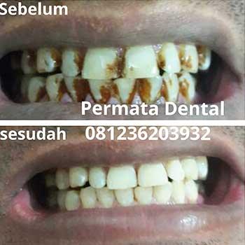 Ahli Gigi Bali Denpasar Jember Klinik Gigi Teeth Cleaning Atau